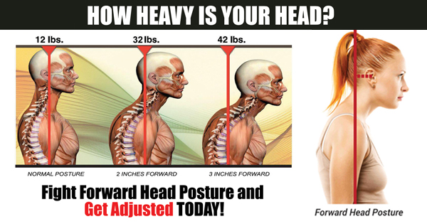 forward head posture promo banner 2