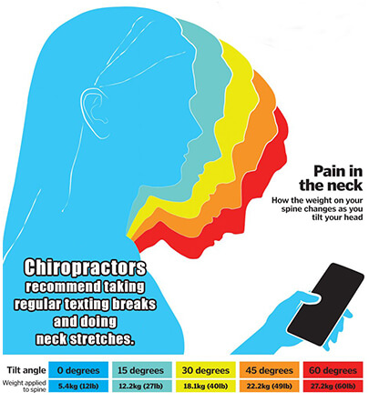 Text Neck Is Real: You May Have It Too