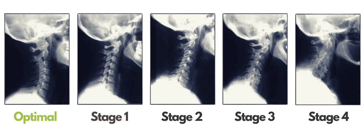 North Shore Chiro blog - stages of degeneration